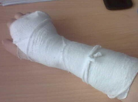 сломанная рука фото